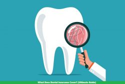 What Does Dental Insurance Cover? [Ultimate Guide]